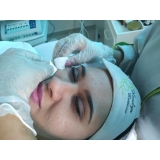 agendamento de limpeza de pele profunda com extração Jardim Umarizal