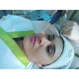 agendamento de limpeza de pele profunda profissional Vila Sônia