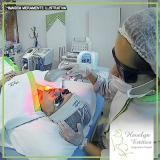clinica de peeling no rosto acne Morumbi