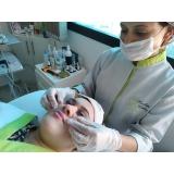 limpeza de pele profunda com extração agendamento Embu das Artes