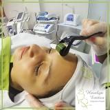 microagulhamento acne Granja Viana