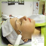 peeling químico para rosto