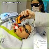 tratamento com tratamento com radiofrequência Jardim Maria Rosa